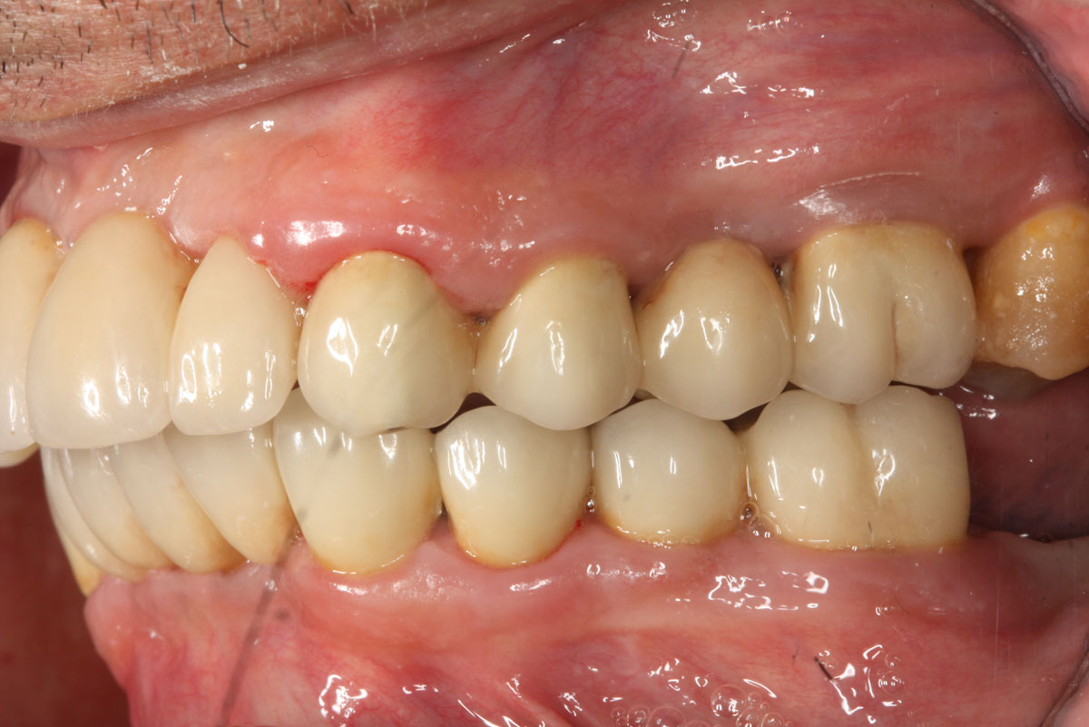 implantologia-avanzata-2