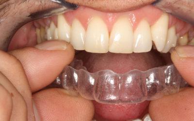 Mascherine dentali: ortodonzia dal Dottor La Rocca