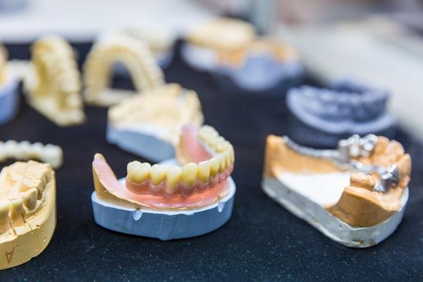 Impianti dentali a Legnano? Il Dott. La Rocca ti può aiutare