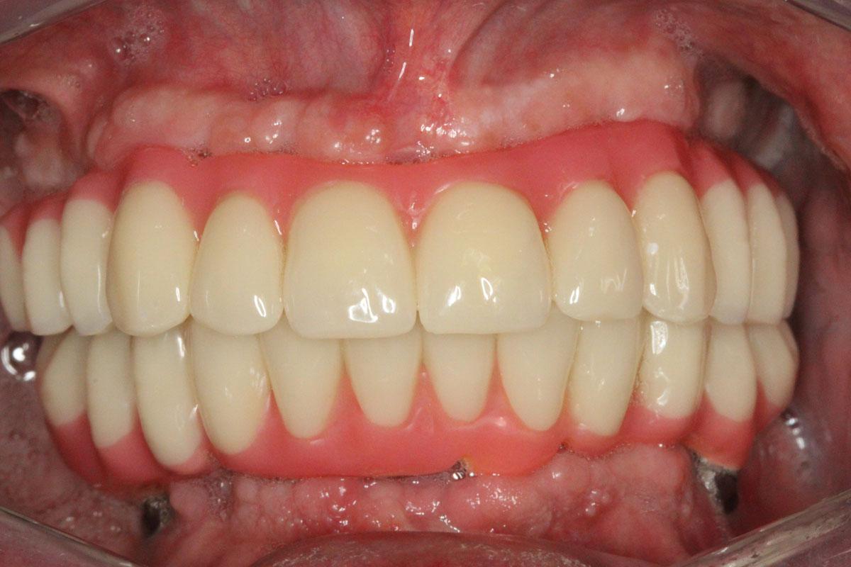 implantologia-dentale-2