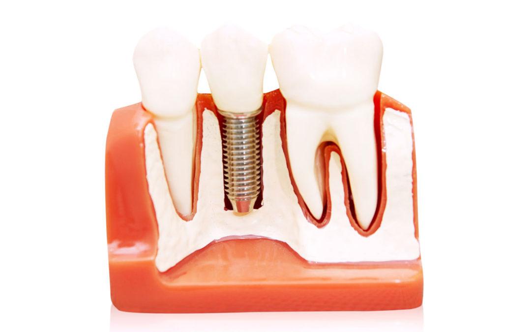 Implantologia Legnano: dal Dottor La Rocca c'è la soluzione per te