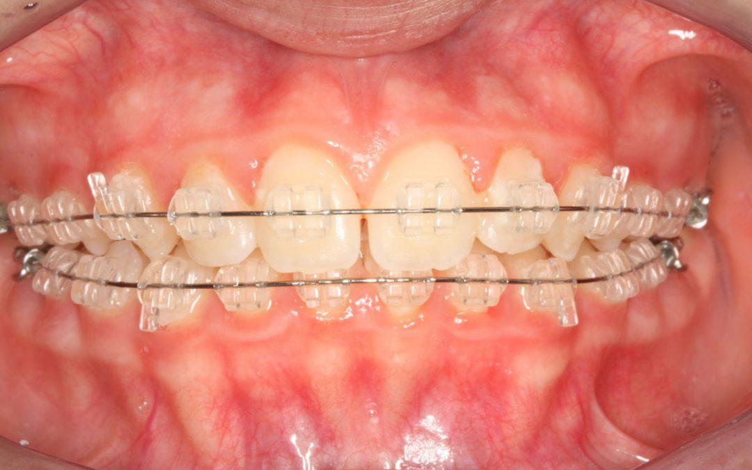Ortodonzia tradizionale a Legnano allo studio dentistico La Rocca