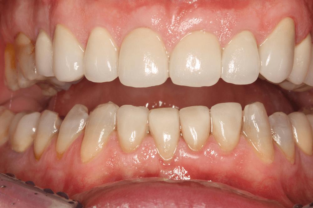 Protesi estetiche dentali Legnano dal Dottor La Rocca