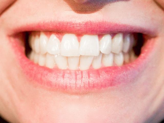 Laser dentale Legnano: una terapia innovativa dal Dottor La Rocca