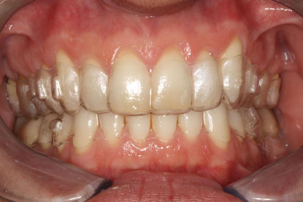 Denti storti Legnano: come sistemarli grazie all'aiuto del Dr. La Rocca
