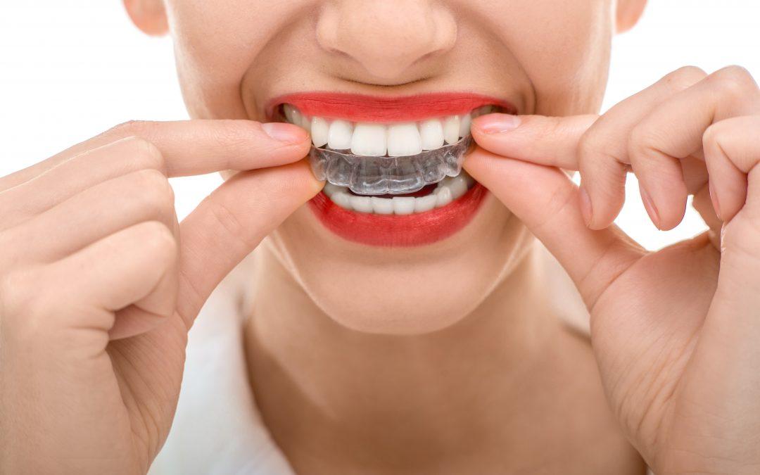Invisalign a Legnano: cos'è e a chi rivolgersi per le mascherine dentali trasparenti
