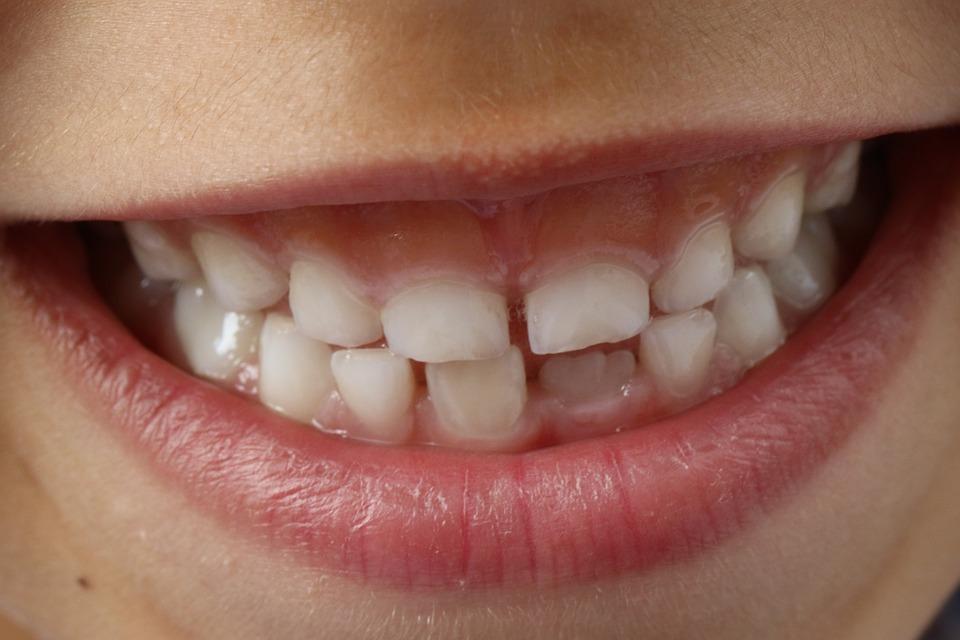 Devitalizzare denti da latte Legnano: come e perché