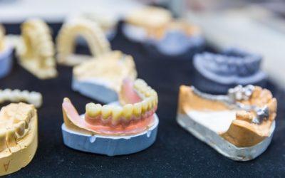 Dentiera a Legnano: a chi rivolgersi per averne una perfetta
