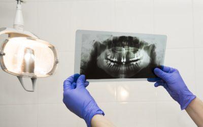 Radiologia dentale a Legnano: diagnostica presso lo studio La Rocca